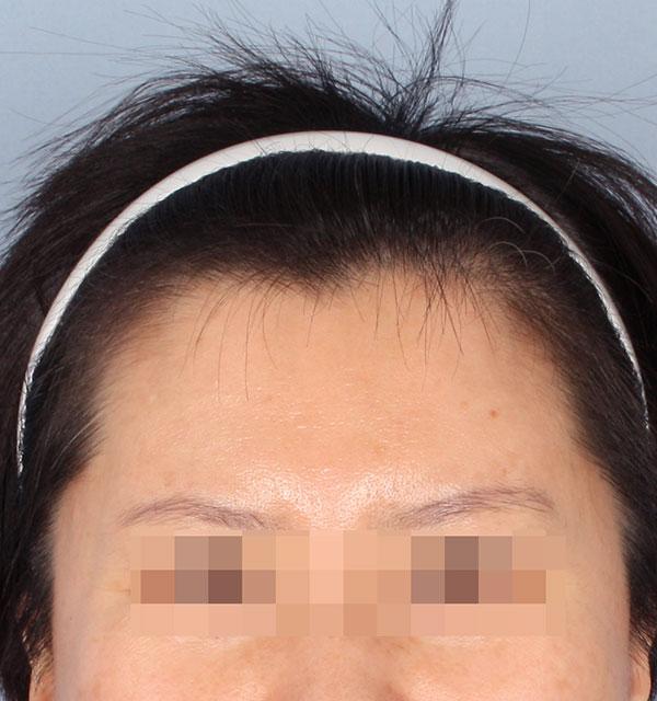 Chính diện Cấy đường mai tóc