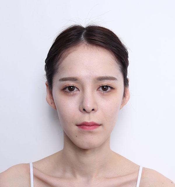 Chính diện Xương hàm mặt (Hàm vuông, gò má, cằm trước)+Cấy mỡ tự thân vùng tráng+Mũi tái phẫu thuật (Sống mũi, đầu mũi)