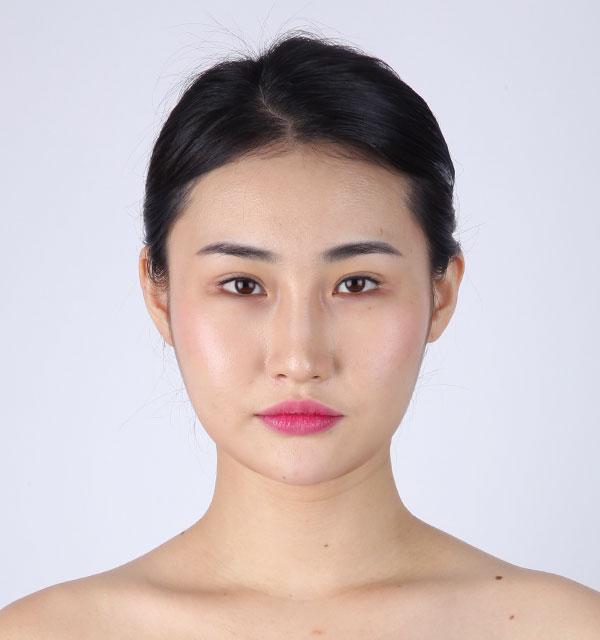 Chính diện Xương hàm mặt (Hàm vuông, gò má, cằm trước)+Mắt (Điều chỉnh dáng mắt không rạch mổ, góc mắt dưới)