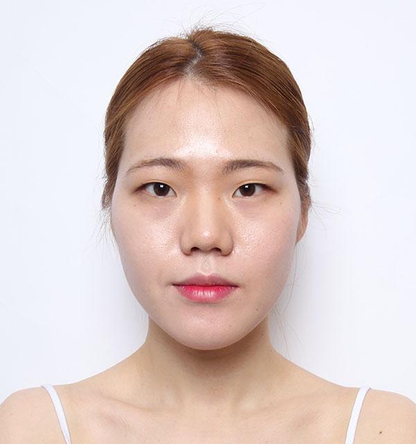 Chính diện Xương hàm mặt (Hàm vuông, gò má, cằm trước)+Mắt (Nhấn mí có rạch mổ, góc mắt trước)+Mũi (Sống mũi, đầu mũi) +Cấy mỡ tự thân vùng tráng