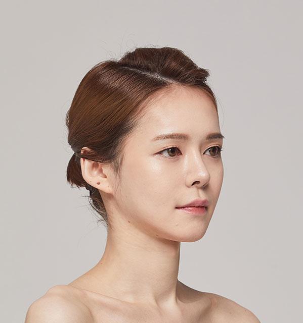 Góc 45 độ Xương hàm mặt (Hàm vuông, gò má, cằm trước)+Cấy mỡ tự thân vùng tráng+Mũi tái phẫu thuật (Sống mũi, đầu mũi)