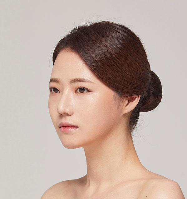 Góc 45 độ Xương hàm mặt (Hàm vuông, gò má, cằm trước)+Mắt (Nhấn mí có rạch mổ, góc mắt trước)+Mũi (Sống mũi, đầu mũi) +Cấy mỡ tự thân vùng tráng