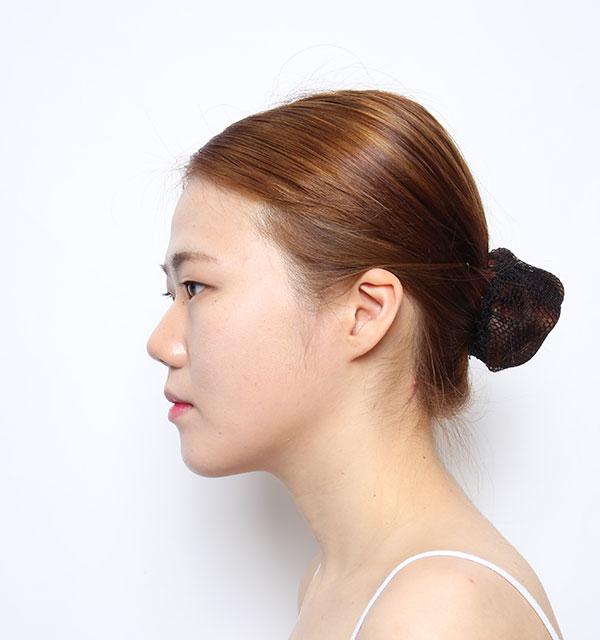 Nửa mặt Xương hàm mặt (Hàm vuông, gò má, cằm trước)+Mắt (Nhấn mí có rạch mổ, góc mắt trước)+Mũi (Sống mũi, đầu mũi) +Cấy mỡ tự thân vùng tráng