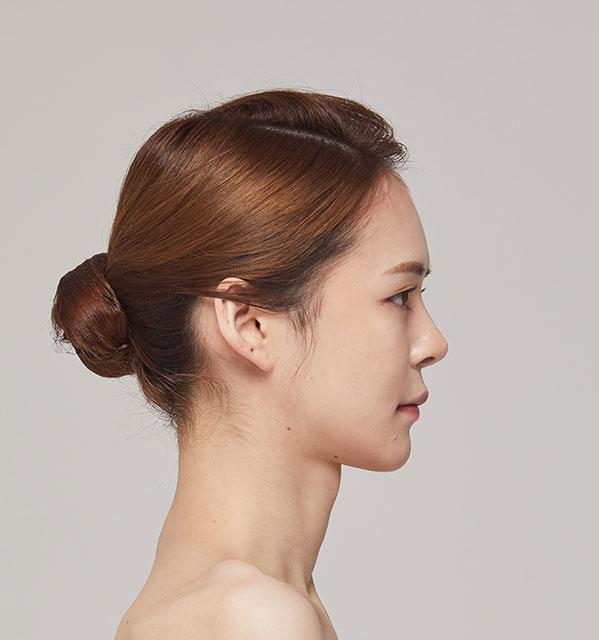 Nửa mặt Xương hàm mặt (Hàm vuông, gò má, cằm trước)+Cấy mỡ tự thân vùng tráng+Mũi tái phẫu thuật (Sống mũi, đầu mũi)