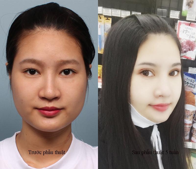 Review tái phẫu thuật gương mặt, mắt, mũi của Chi