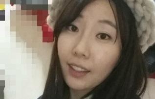 Review tiêm filler hình ảnh  của Chenchen