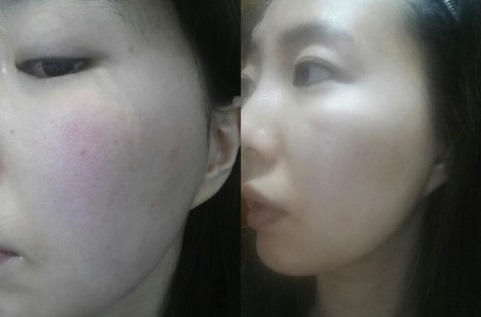 Review điều trị mặt ửng đỏ của Chenchen