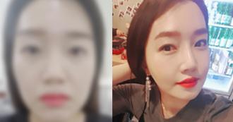 Thẩm mỹ gương mặt + mắt + mũi và cấy mỡ của YeJi
