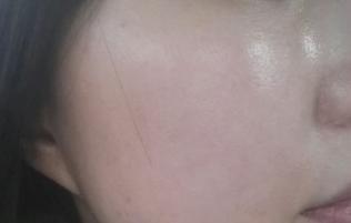 Review điều trị Fraxel Dual của Chenchen
