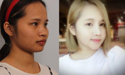 Review thẩm mỹ gương mặt + mũi của Kim